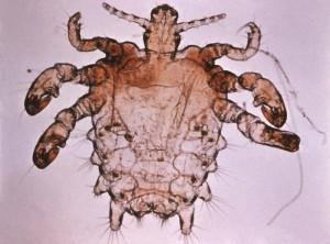 Fladlus lever i kønsbehåringen omkring kønsdelene