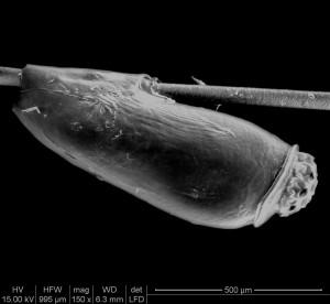Lus fastklistrer deres æg på hårstrå